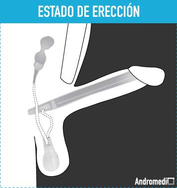 hay un micropene de 3 cm en erección