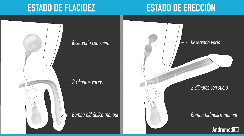 ¿Como funciona la protesis de pene?