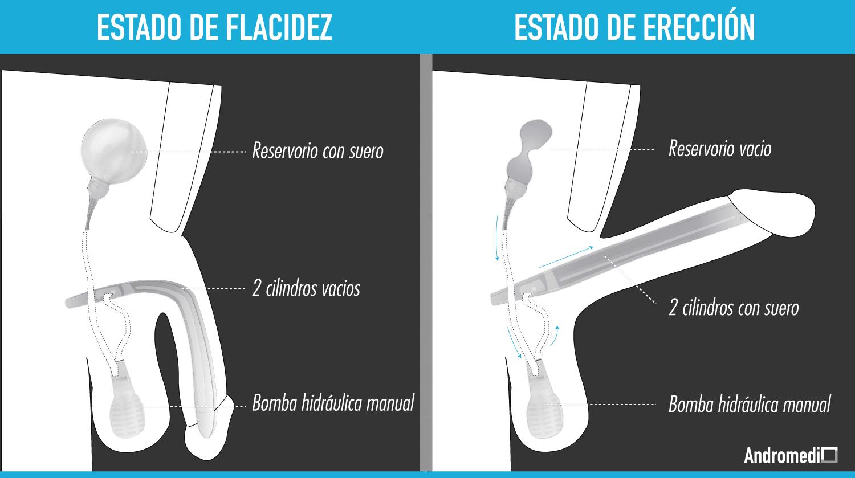 protesis peneana fotos